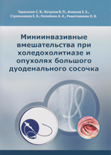 Миниинвазивные вмешательства при холедохолитиазе и опухолях большого дуоденального сосочка