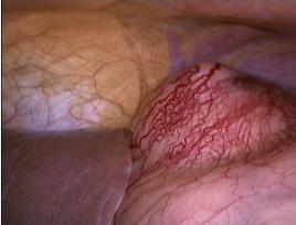 Рис. 5 Вид ГИСО желудка со стороны брюшной полости.