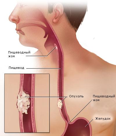 Лейомиома  пищевода со слоистым кальцинозом и остеогенезом