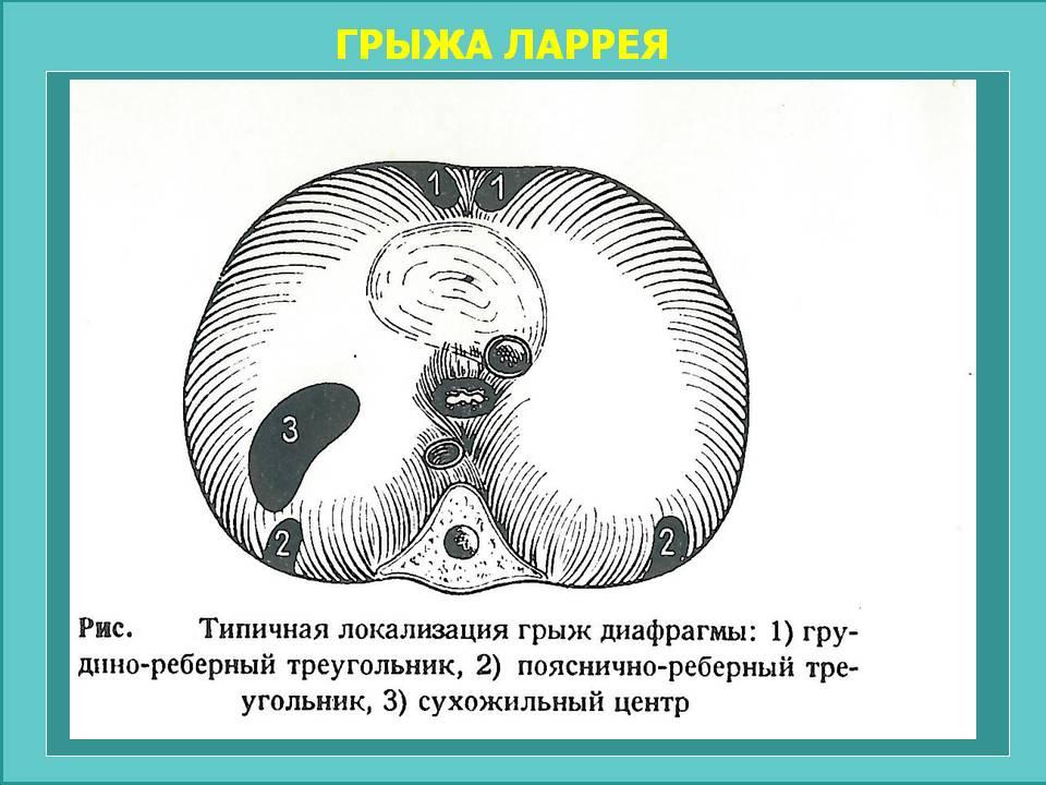 ГРЫЖА ЛАРРЕЯ