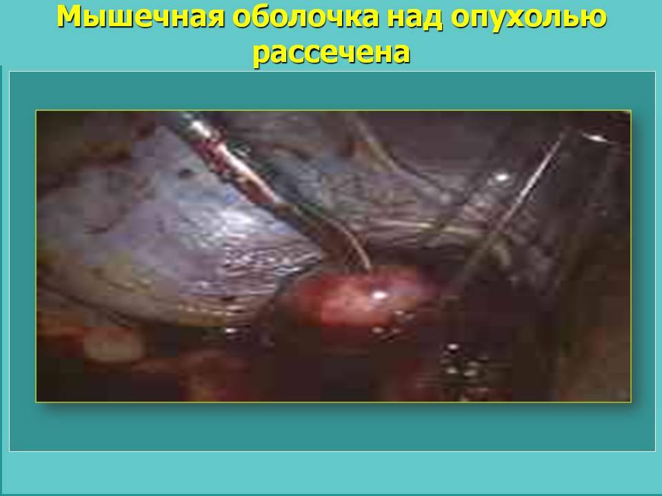 Мышечная оболочка над опухолью рассечена