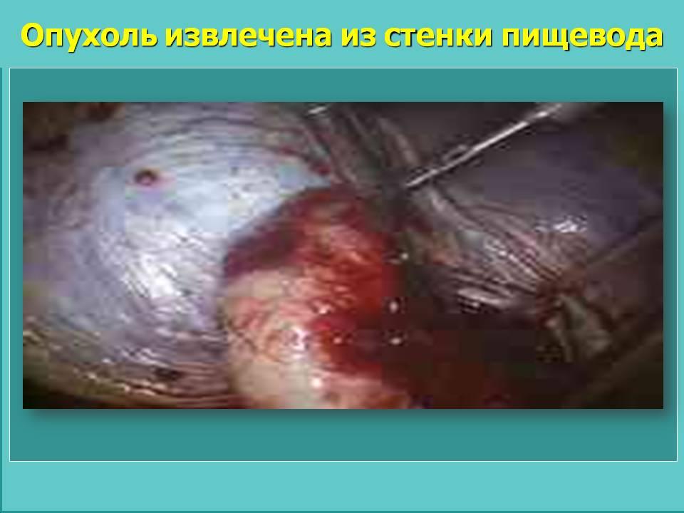 Опухоль извлечена из стенки пищевода