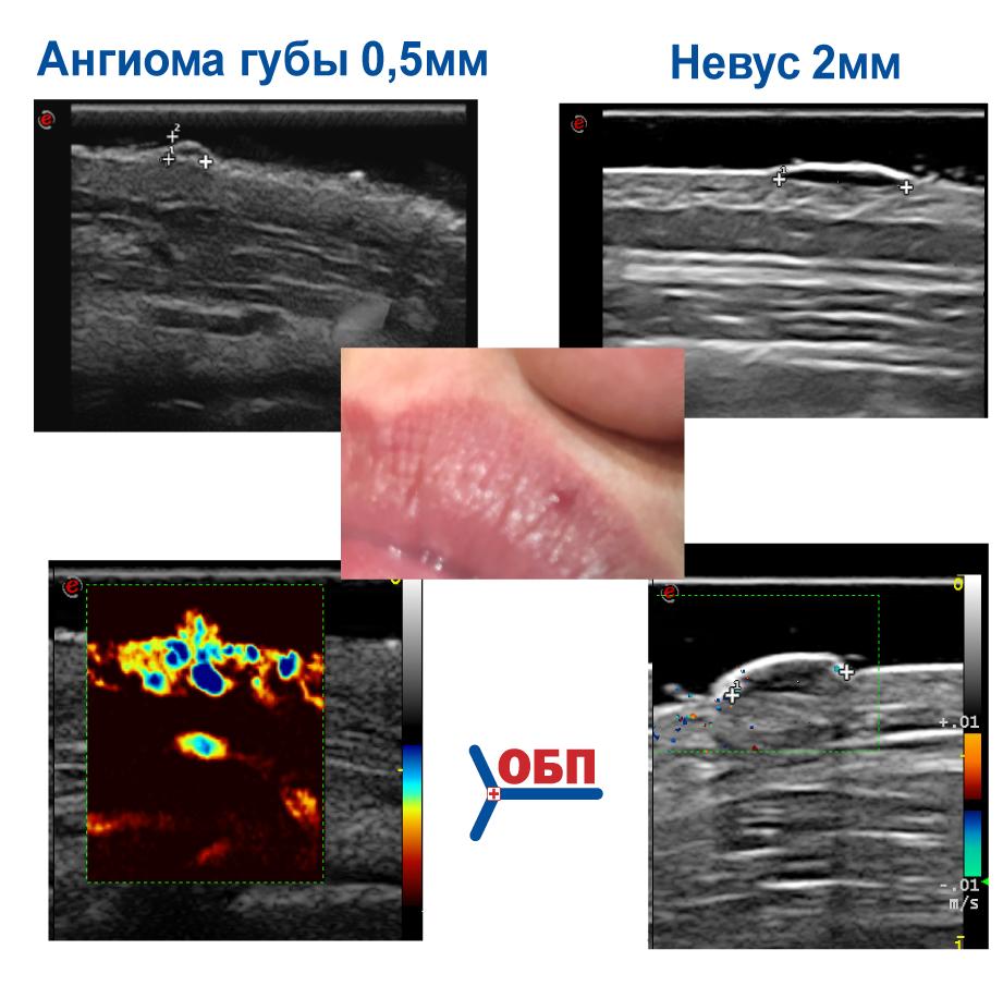 Новый метод  экстремальной визуализации новообразований в дерматовенерологии (невусы, меланомы)