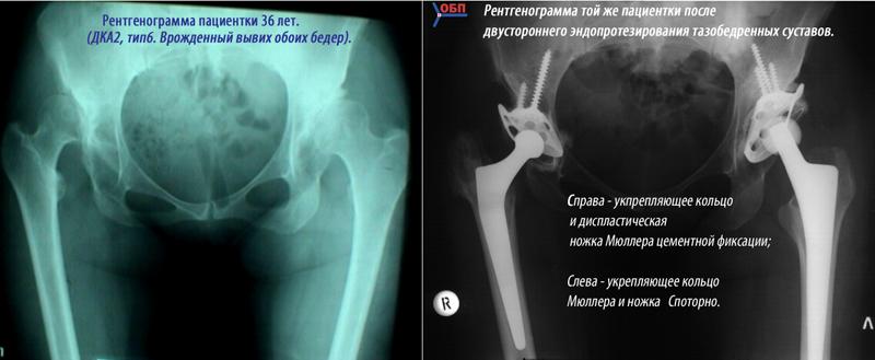 Как проехать до областной детской больницы в ульяновске