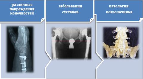 клиники по протезированию тазобедренных суставов в россии