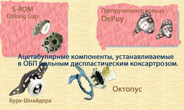 Протрузионное кольцо DePuy, Бурч-Шнайдера, Октопус