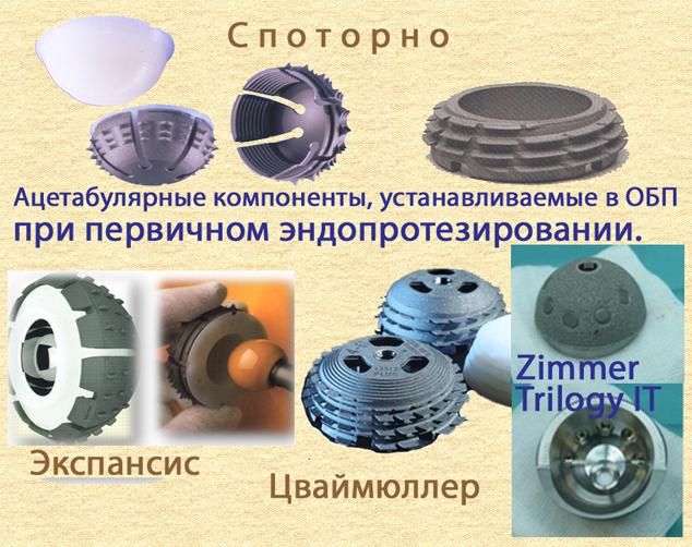 Ацетабулярные компоненты, устанавливаемые в ОБП при первичном эндопротезировании, Споторно, Экспантис, Цваймюллер