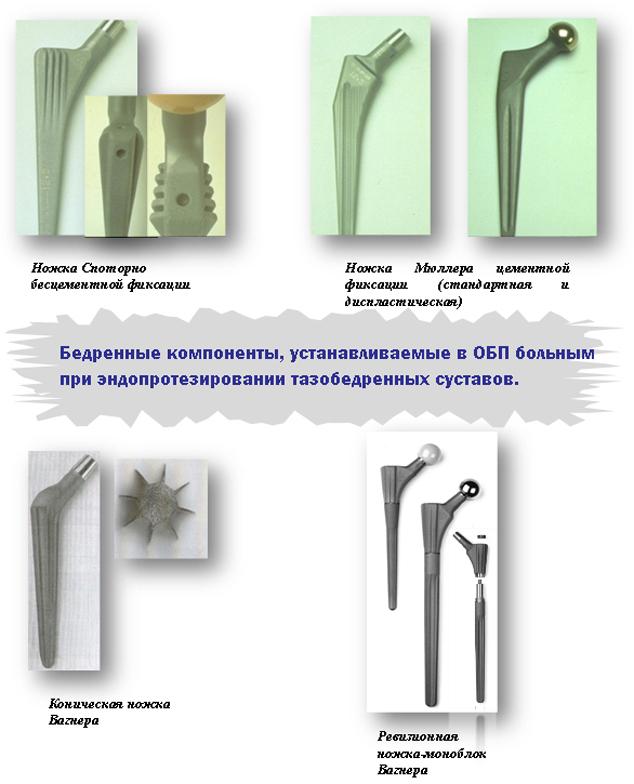 Бедренные компоненты, устанавливаемые в ОБП больным при эндопротезировании тазобедренных суставов, Ножка Споторно, ножка Мюллера, Коническая ножка Вагнера