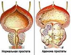 Доброкачественная гиперплазия (Аденома) предстательной железы