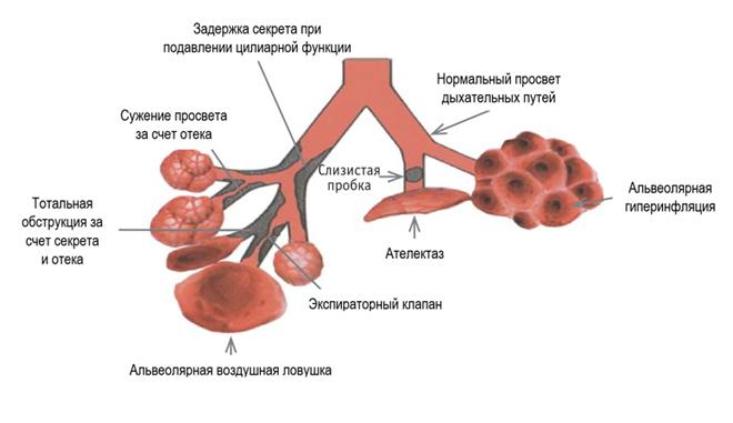 Интрапульмональная перкуссионная вентиляция